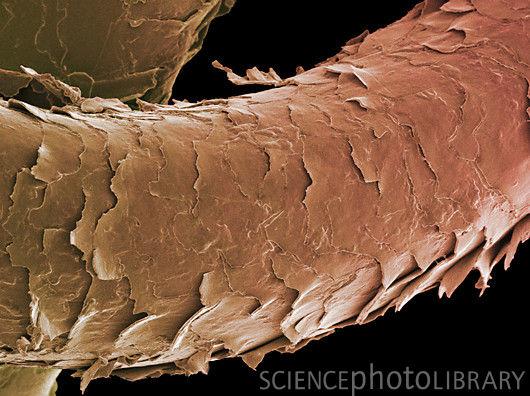 Damaged human hair under microscope - photo#2